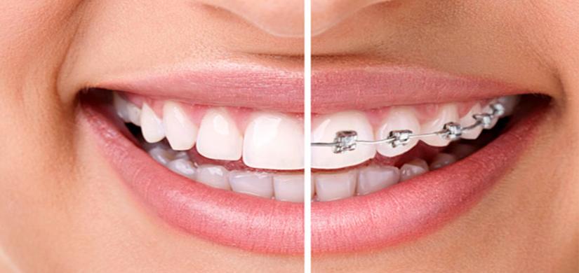 ортодонтия в москве